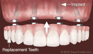 implants-replace-all-teeth