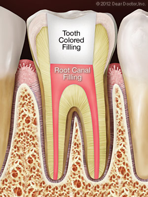 after-root-canal