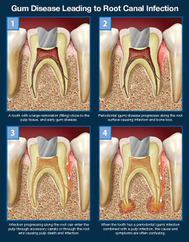 gum-disease-leading-to-root-canal-infection-thumb