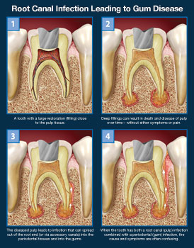 root-canal-infection-leading-to-gum-disease-thumb