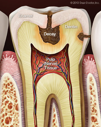 tooth-decay-sensitive-teeth